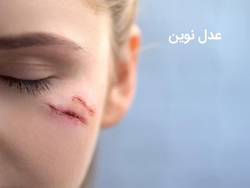دیه بخیه جراحات سر و صورت