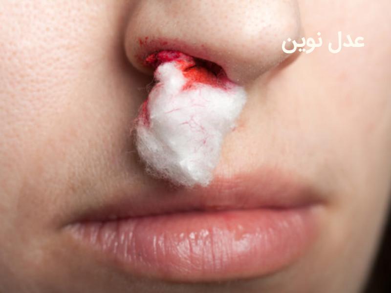 میزان دیه انواع صدمات وارد شده به بینی