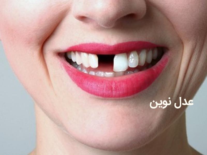 دیه از بین رفتن دندان